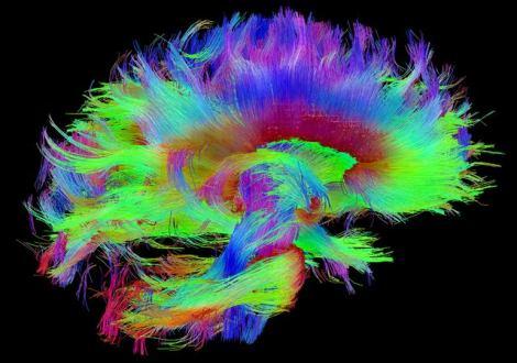 بافت مغز انسان