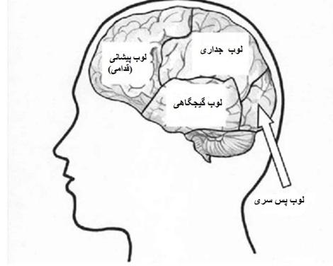 fig2-brain